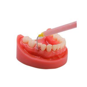 Смесительный наконечник Core oral tip-Y S119 - применение