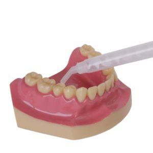 Смесительный наконечник Bite oral tip S122 - применение